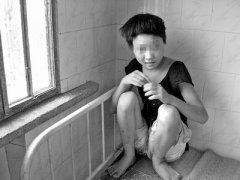 儿童发育迟滞的症状有哪